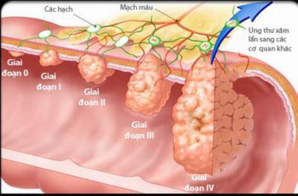 Giai đoạn phát triển của bệnh ung thư